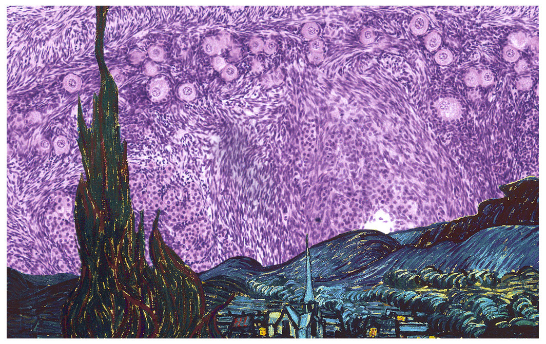 i-heart-histo: The Starry Night: Histology - glass and petrol - glassandpetrol.tumblr.com