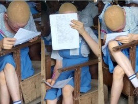 Youth corper seeks help for her female albino student who has issues with her eyesight