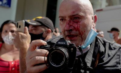 AP photographer, Spanish Ramon Espinosa, is seen with injuries in his face