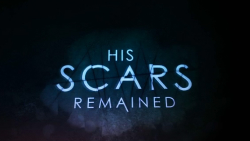 His scars remained