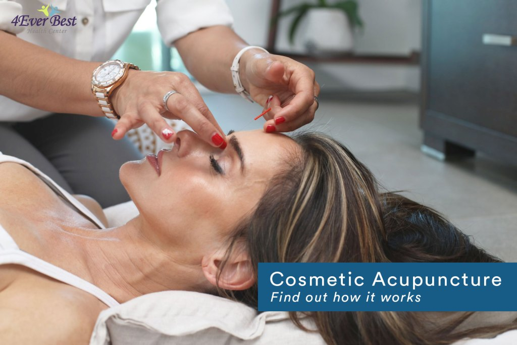 acupuncturist needling on a woman's face