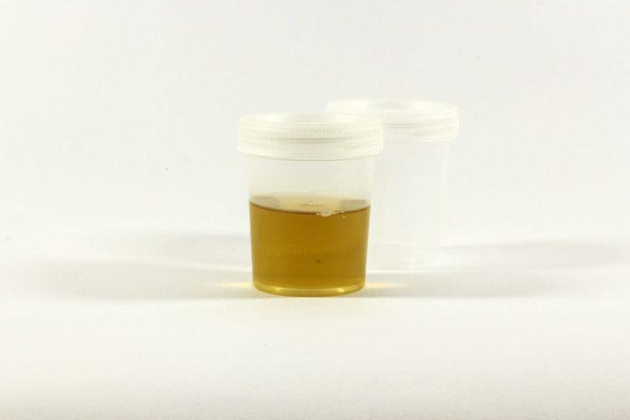 Urin im Testbehälter