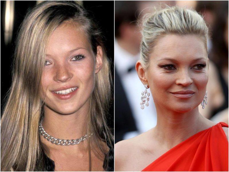 звёзды растерявшие весь свой шарм и красоту с возрастом, знаменитые личности не умеют красиво стареть
