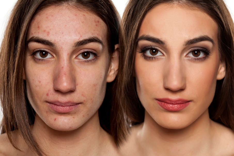 problematic skin before and after makeup