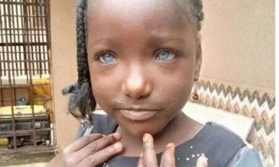 Blue eyes Man allegedly disowns daughter because she has blue eyes - 20200804 064240 1 - Man allegedly disowns daughter because she has blue eyes