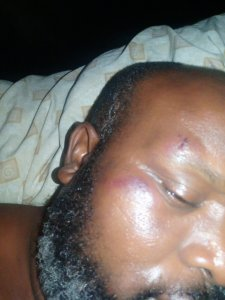 Mr Anthony after he was attacked by OSPAC taskforce how ospac men nearly killed me, shot into the air- port harcourt resident - 20210201 120346 225x300 - How OSPAC men nearly killed me, Shot into the air- Port Harcourt resident how ospac men nearly killed me, shot into the air- port harcourt resident - 20210201 120346 - How OSPAC men nearly killed me, Shot into the air- Port Harcourt resident