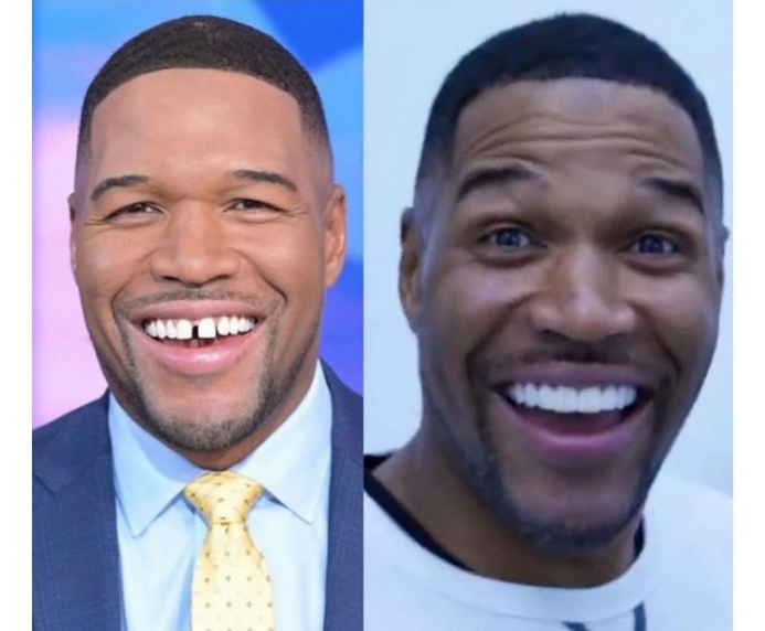 - Screenshot 20210331 101343 1 - Michael Strahan, A Former NFL Star, Closes His Infamous Tooth Gap