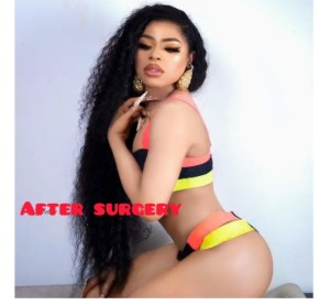 - Screenshot 20210715 080846 1 300x277 - See Before And After Pictures Of Celebrities That Did Surgery