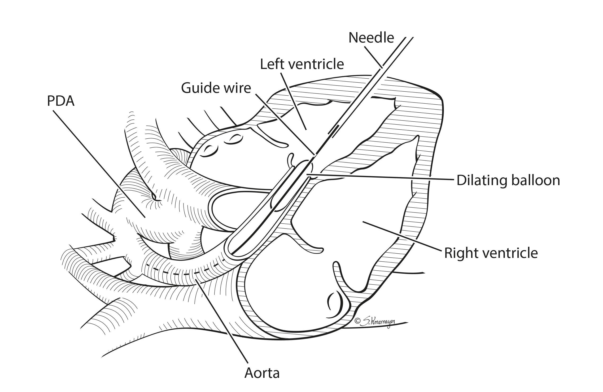 Case Study Successful In Utero Aortic Valvuloplasty