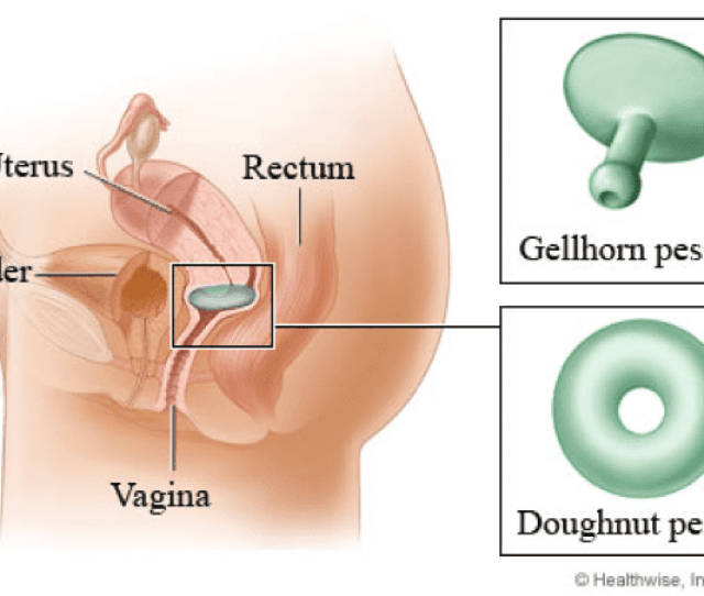Surgical Interventions Include Fixation Or Suspension Of The Tissues That Are Loose Either Vaginally Or Abdominally Usually A Mesh Is Placed When