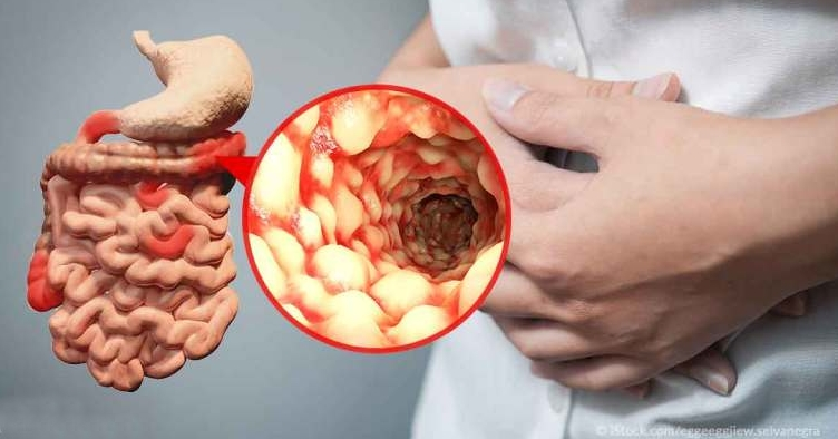 crohns-disease-hs-fb-crop.jpg