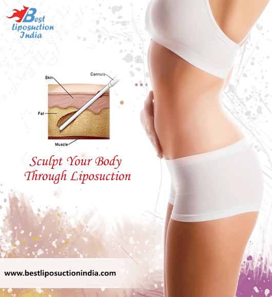 Best Liposuction India - Liposuction Cost in India ...
