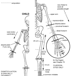 figure 56 2 amputation sites in the arm save every centimetre in the leg [ 837 x 1280 Pixel ]