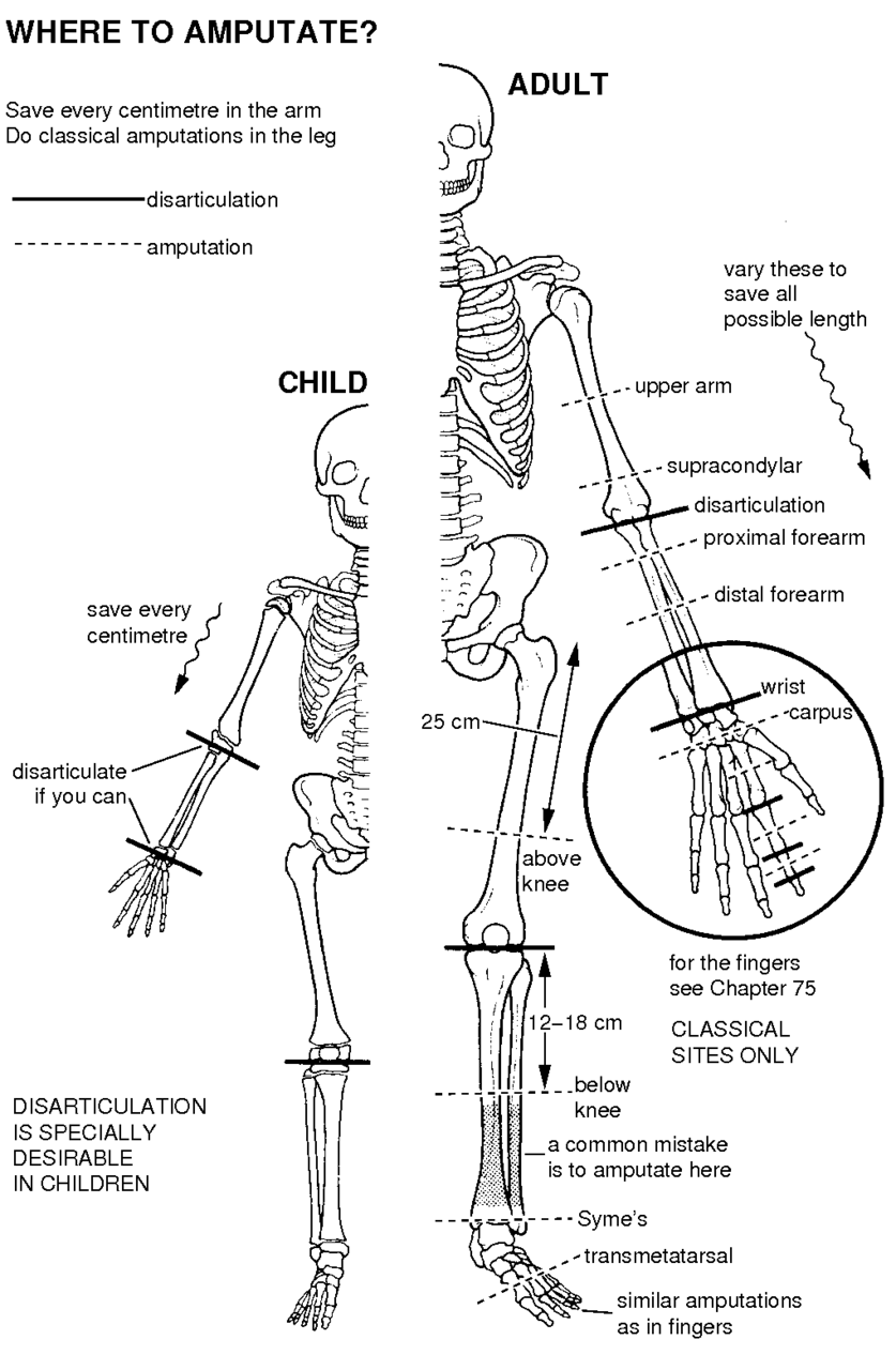 medium resolution of figure 56 2 amputation sites in the arm save every centimetre in the leg