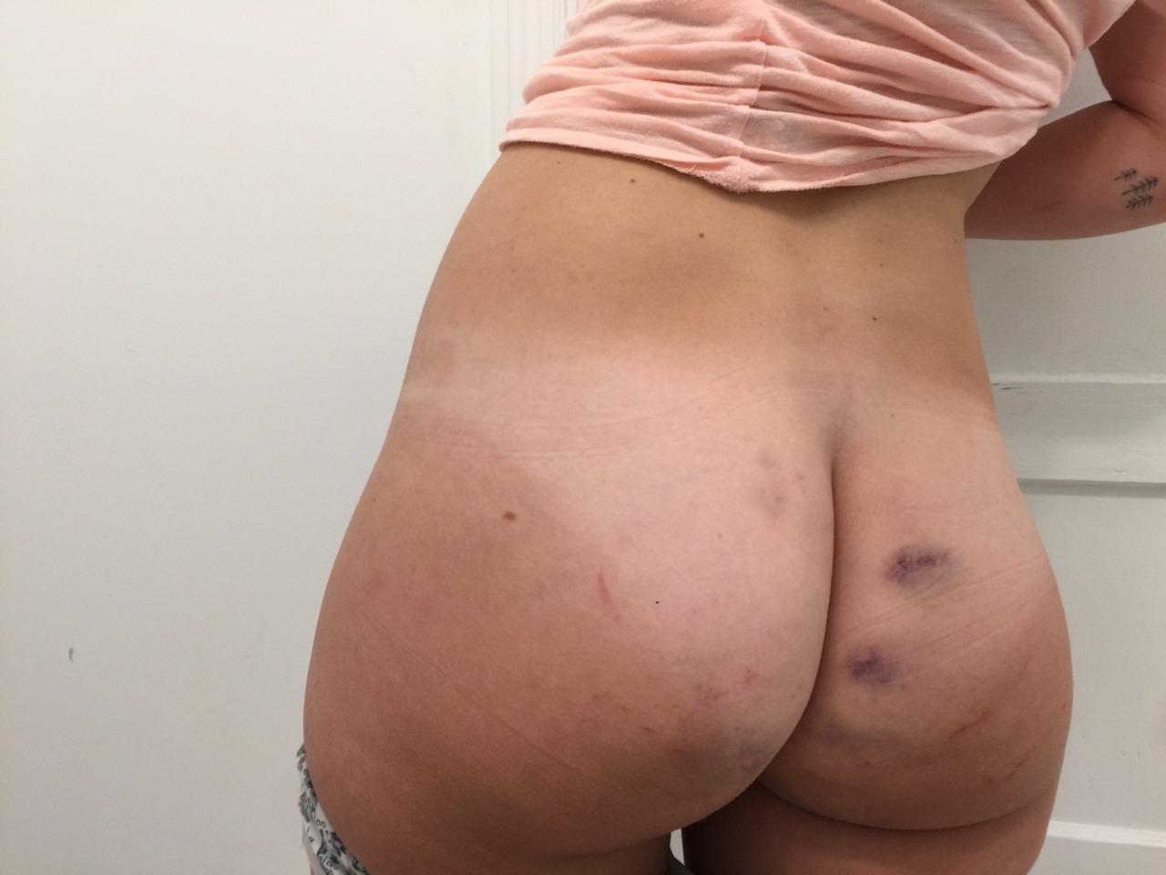 littlesexpet:  💗glad i got spanked yesterday💗