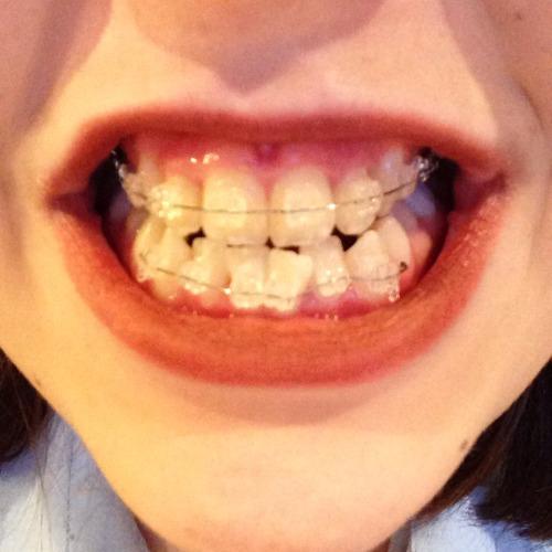 ceramic braces on Tumblr