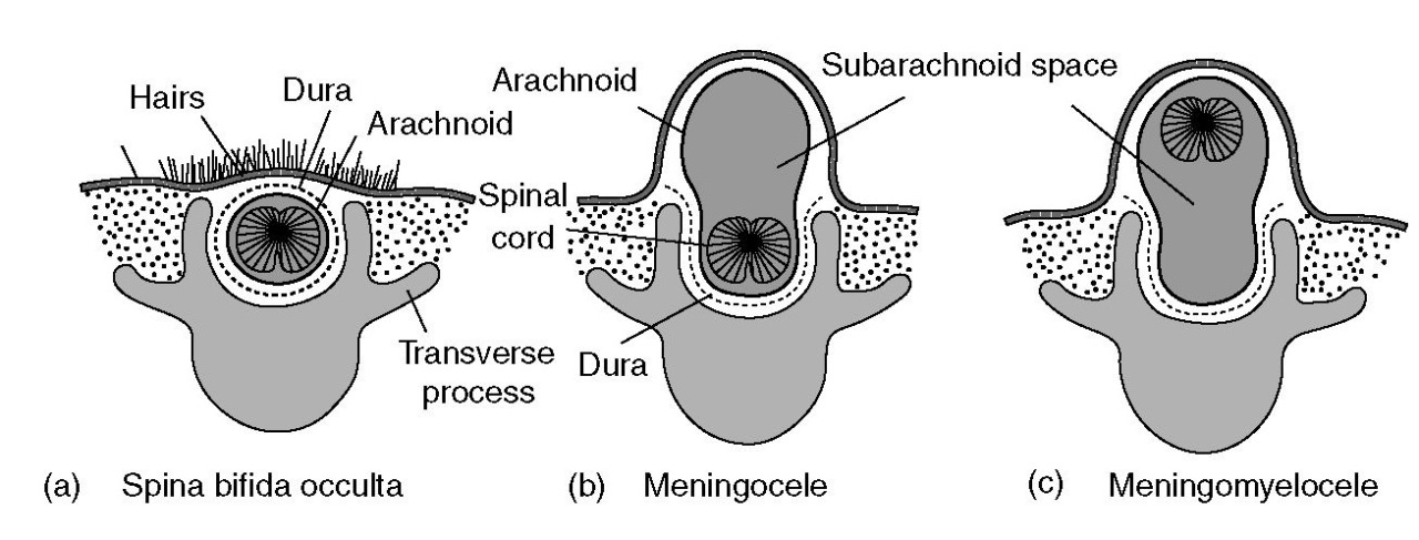 My Notes for USMLE — usmlenotebook: Spina Bifida is a