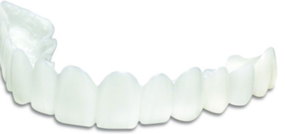 Snap-on-Smile...Before and After | 6th Ave Periodontics