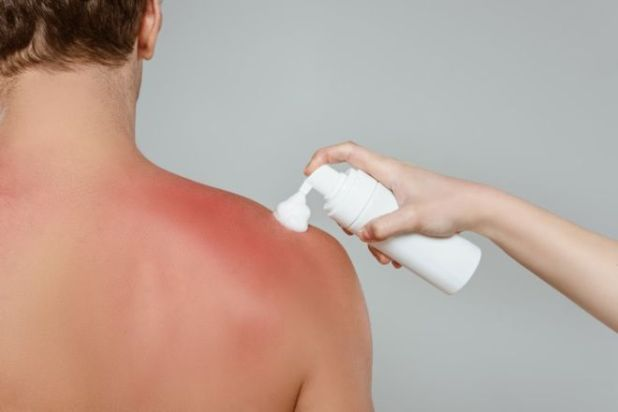 A Complete Guide For Detection And Treatment Of Sun Poisoning