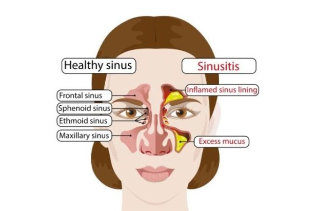 7 Common Reasons For Sinus Infection