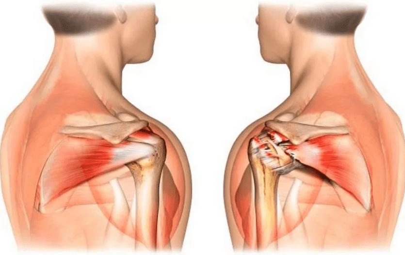 Θεραπεία του πόνου στην άρθρωση των ώμων