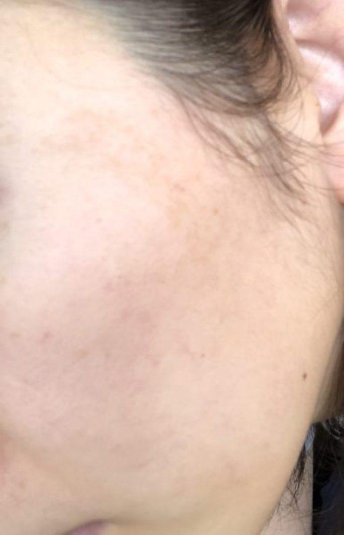 レチンA/デラニンクリーム使用1ヶ月後の肌の状態
