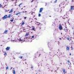 Gastropathology