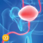 """UCLA State-of-the-Art Urology """" Special Offer"""