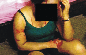Photo shows Rita, crying, injured and bleeding, shortly after the attack. The photo was taken by her daughter.