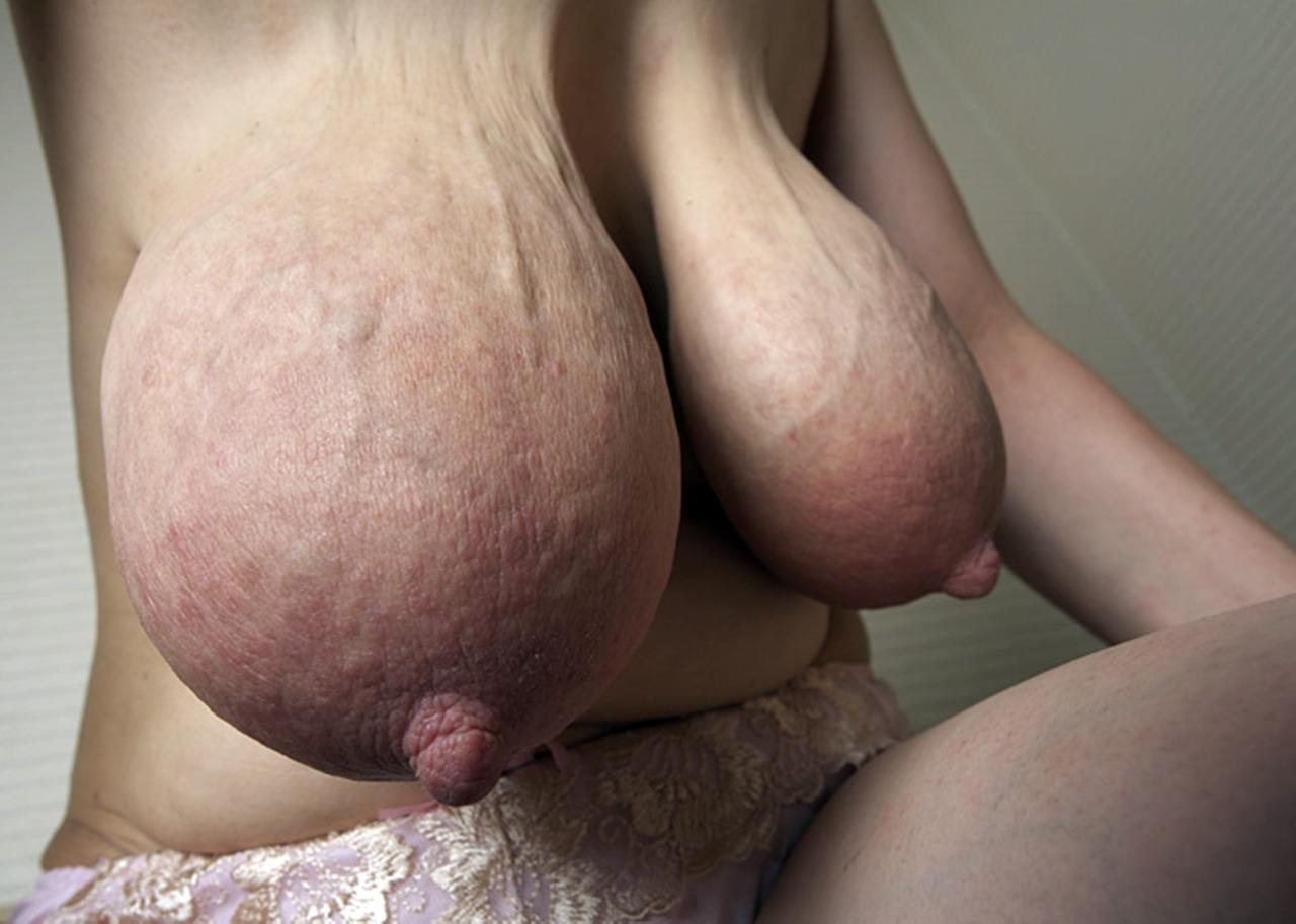 Big Veiny Breast Lactating Tumblr