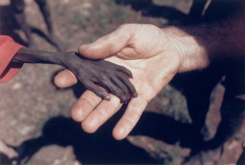 A starving boy and a missionary in Uganda, 1980 [1600 × 1081] Check this blog!