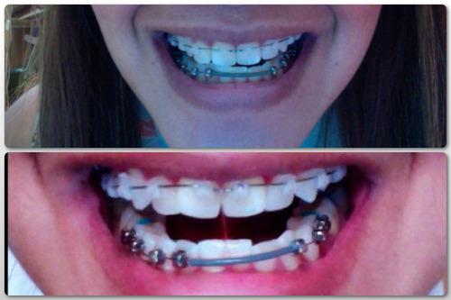 Plaque Teeth I My Have