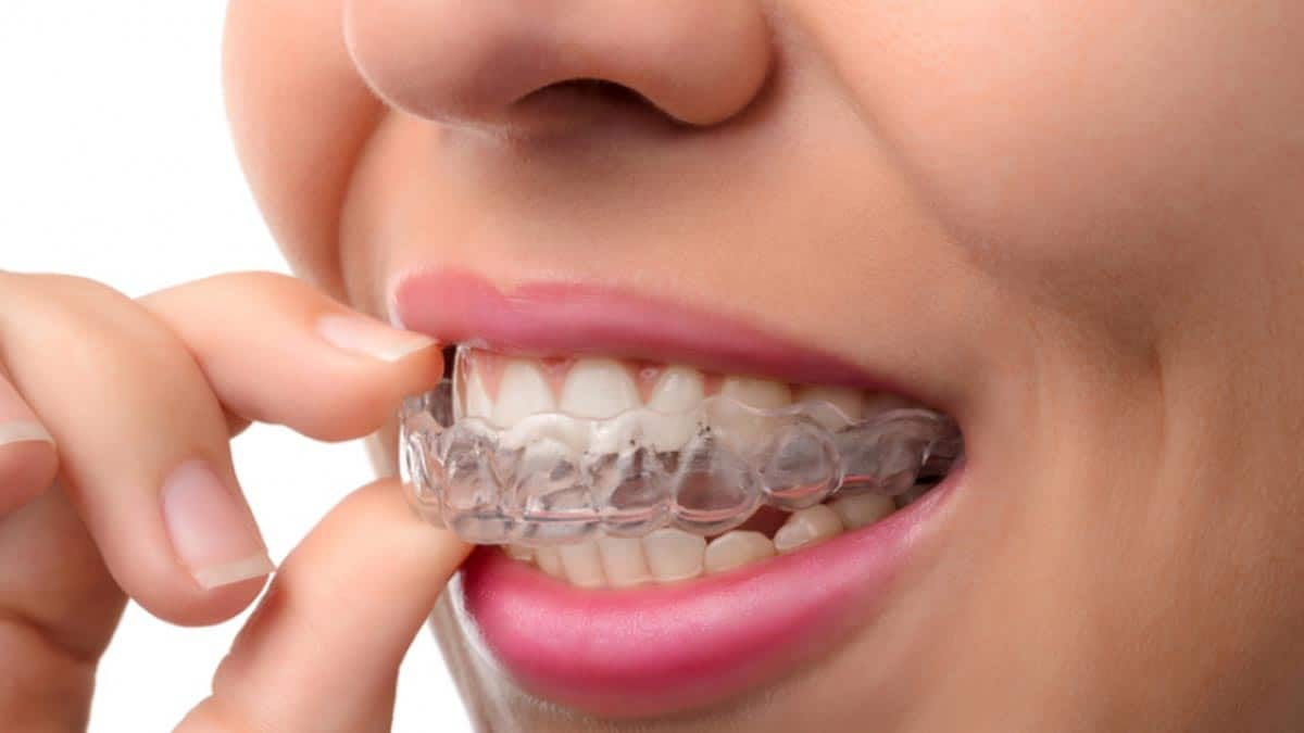 Receding Gums – Symptoms, Causes and Treatment Long Teeth