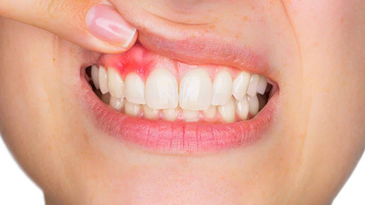 Receding Gums – Symptoms, Causes and Treatment receding gums guide