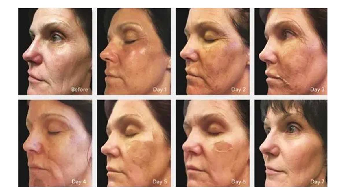 what is a chemical peel Chemical Peel for Acne Scars: Home vs Professional Assistance Understanding the Process of Chemical Peel