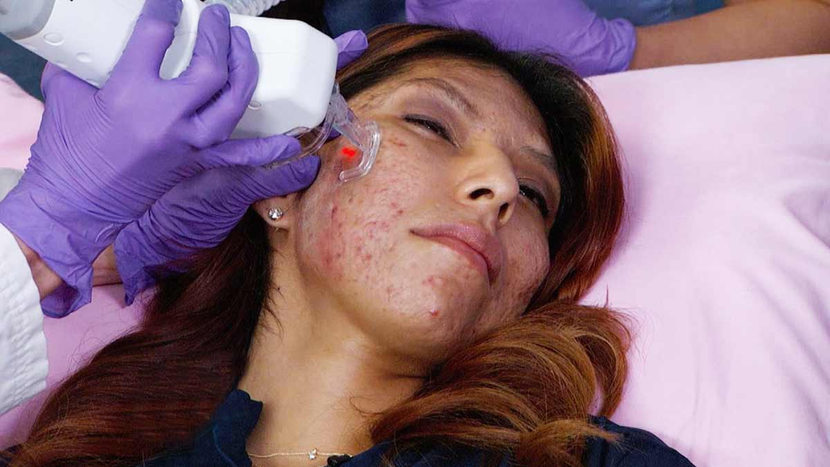 laser scar removal treatment Laser Treatment for Scars: Procedure, Effectiveness, and More What is Laser Treatment