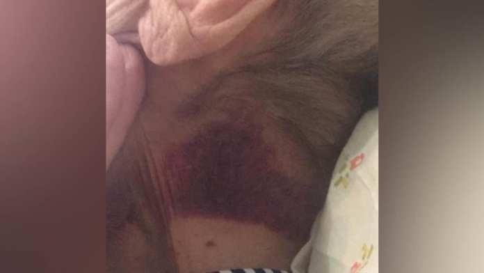 В Москве санитарку обвинили в нападении на пациентку больницы