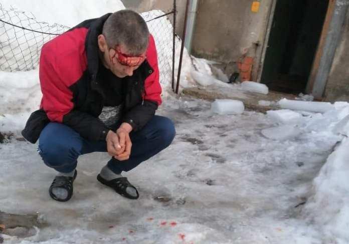 СК начал проверку после падения ледяной глыбы на голову рязанцу