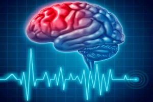 15 міфів про інсульт