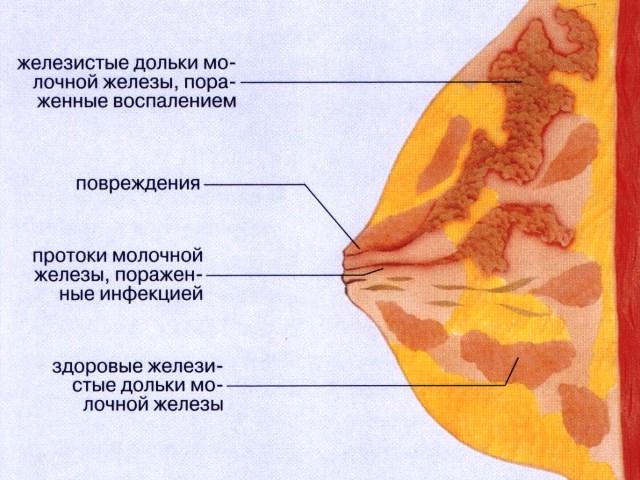 Воспалительный процесс после родов. Осложнения после родов: симптомы причины и лечение