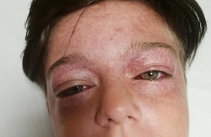Imagen de Facebook donde se aprecian las lesiones del niño