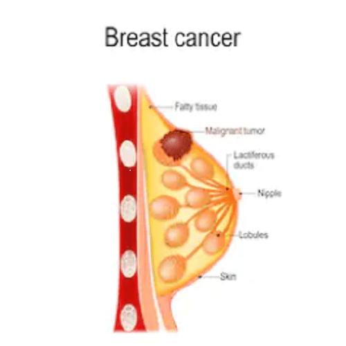 乳房脂肪瘤你了解多少?