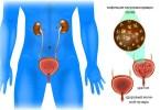 Воспаление мочевого пузыря