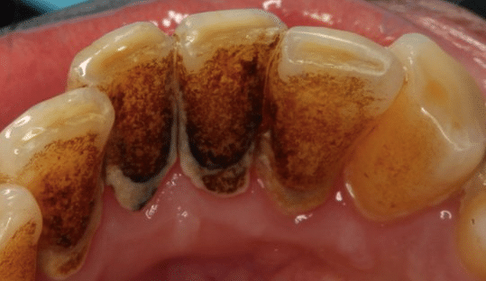 superficial tooth staining