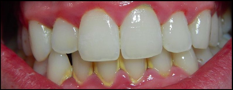 Photo of teeth with tatar at the gumline causing gingivitis