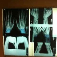 Imagen radiografía 94
