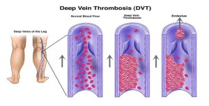 Chances of Venous Thrombosis in Covid-19 Patients