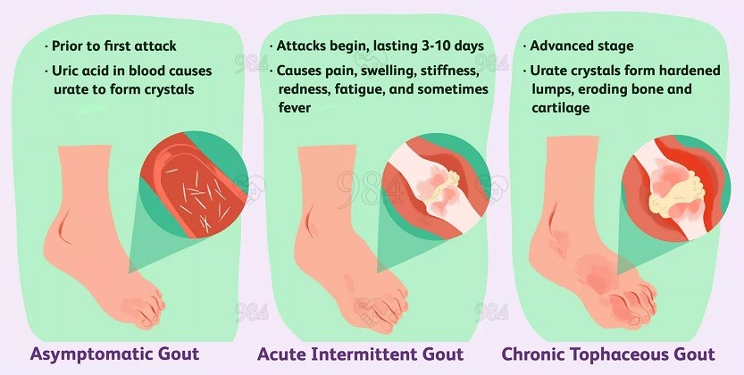 Management of gout in primary care: challenges and potential solutions by 98.4