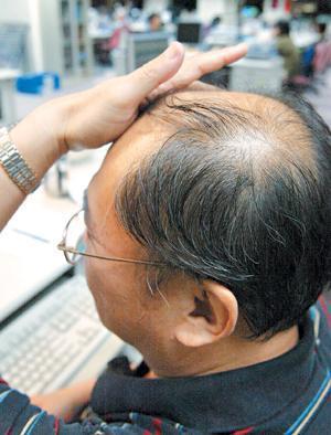 有雄性禿嗎?拯救禿頂、脫髮。絕招在這裡 - 9900 健康醫療頻道