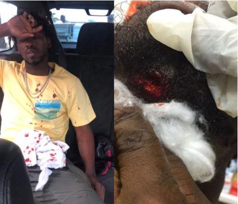 Singer, Orezi Survives Car Crash On Third Mainaland Bridge, Suffers 'Broken Jaw' 4
